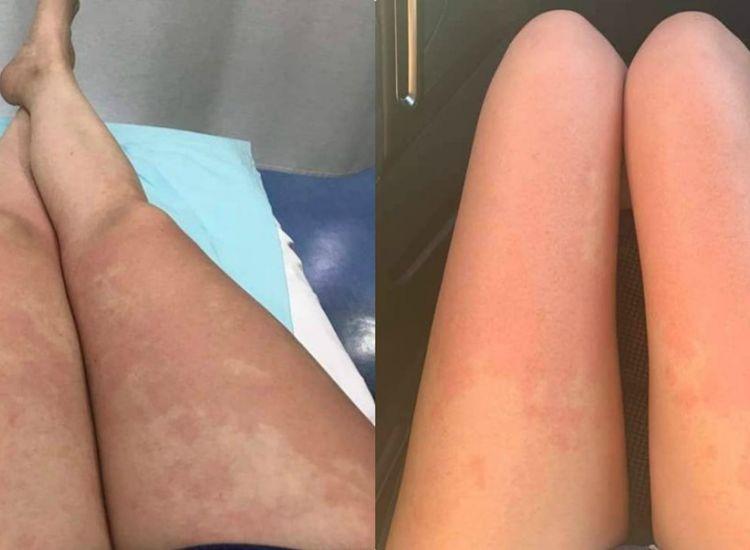 Στο νοσοκομείο με μόλυνση από σαλμονέλα δύο νεαρές (photo)