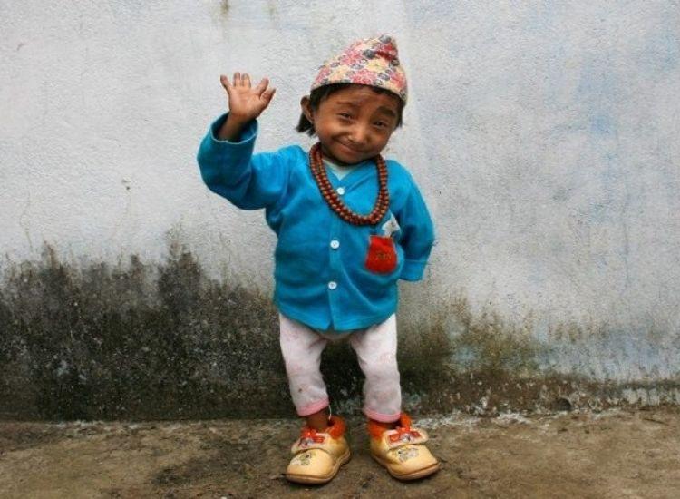 Πέθανε από πνευμονία στα 27 του χρόνια ο πιο μικρόσωμος άνθρωπος του κόσμου