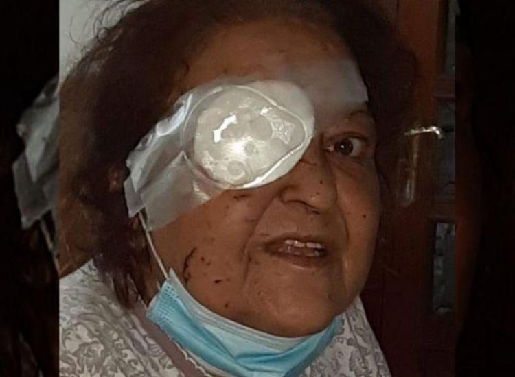 Βηρυτός / Συγκλονίζει μαρτυρία Ελληνίδας: «Έχασα το μάτι μου...»