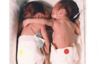 Η ιστορία της αγκαλιάς των διδύμων που γεννήθηκαν πρόωρα το 1995 και έγιναν viral το 2020