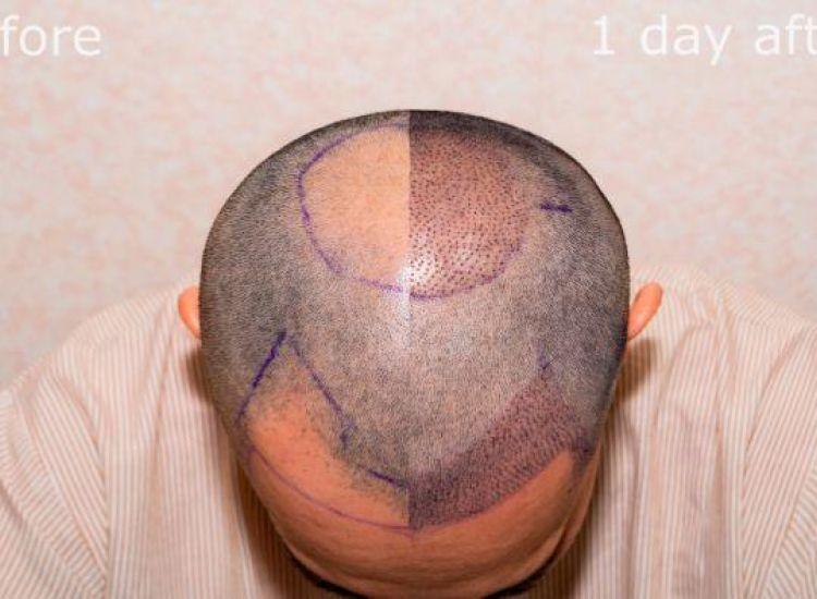 Πέθανε μετά από εγχείρηση 12 ωρών εμφύτευσης μαλλιών–Ζήτησε να του βάλουν 9 χιλιάδες τρίχες
